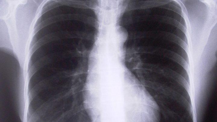 Szczepionka przeciw pneumokokom